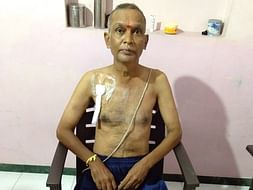 HELP FOR DIALYSIS AND SECOND KIDNEY TRANSPLANT