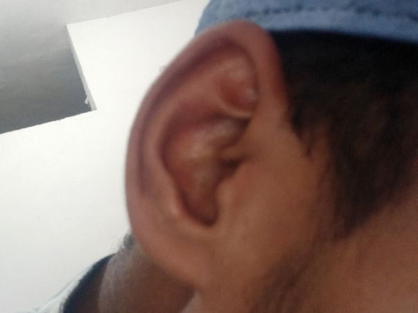 Help Me For My Ear Operation