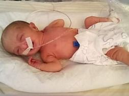Help Baby-of-Sandhia Get Treated