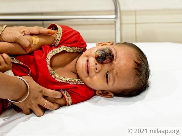 Ashia Parveen needs your help to undergo his treatment