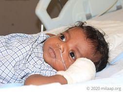 Help Baby of Shravanthy Fight Immuno Deficiency
