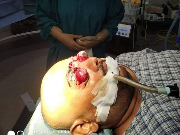 Support Anup Roy To Recover