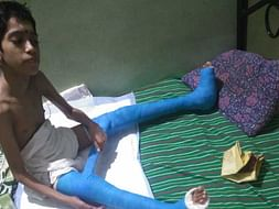 Help Krishna Get Treated for Cerebral Palsy