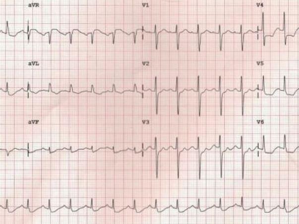 Support Surya Prakash for heart surgery