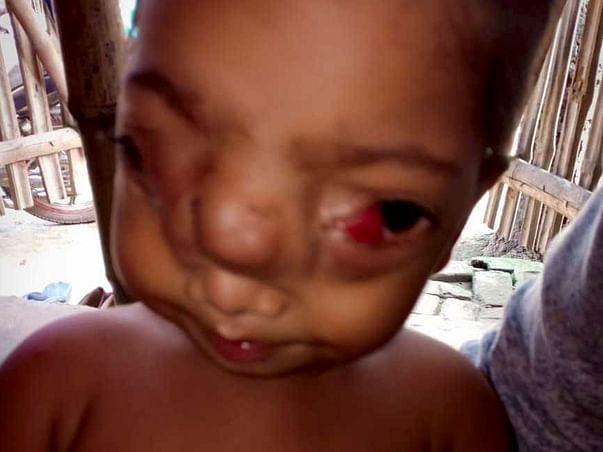 Help Jahirul Undergo Neuro surgery & plastic Surgery