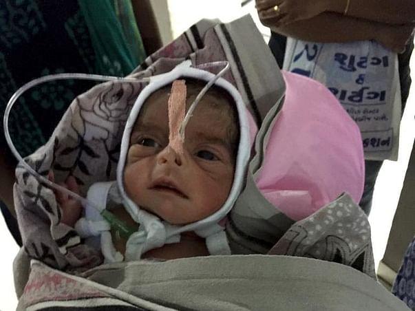 Help Manubhai's Premature To Survive