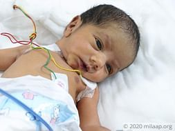Help Baby of Naziya Undergo ASO + VSD Surgery Closure