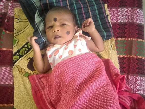 Save 24 Days Old Baby With Heart Complication