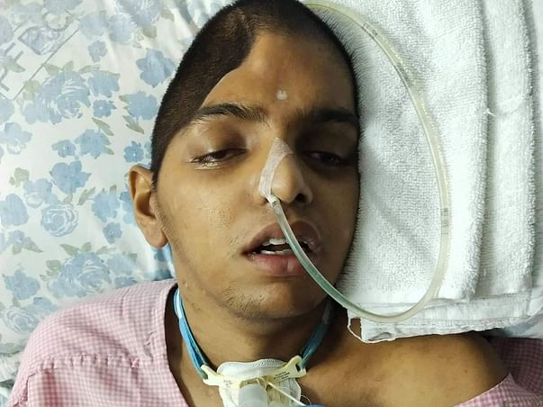 Help Vinay Recover From A Major Accident