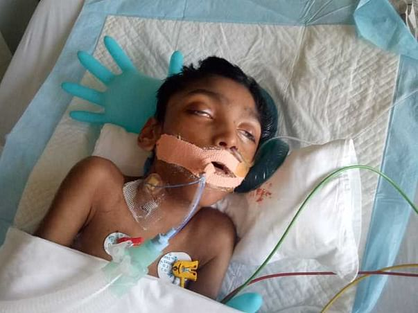 Help Roger Fight Serious Respiratory Issues-Accute Cerebral Palsy