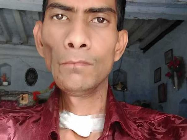 Help Ashok Recover From Mouth Cancer