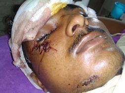 Help Neeraj Recover From An Accident