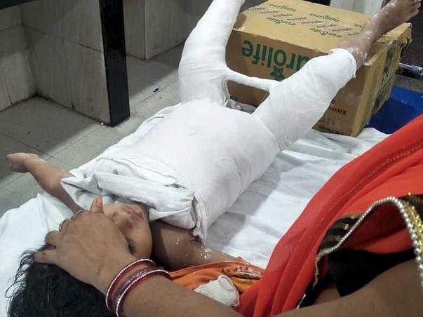 Help Divyansh Stand On His Leg Again