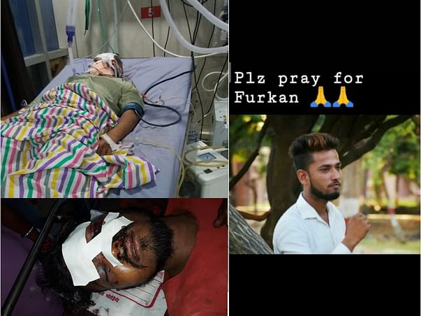 Help the Brother of an RTE student, who met with an accident!