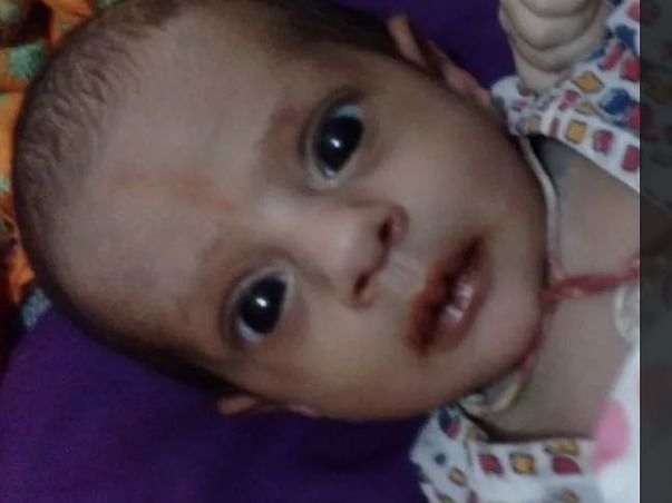 Help 2-Year-Old Chetana Recover From A Rare Disease - TAPVC.
