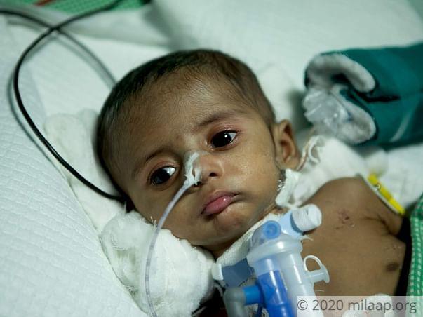 Help Baby of Haritha Rani Undergo VSD Closure