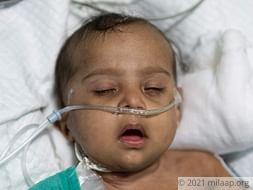 Help Baby of  Chandra Shakar Recover From Pneumonia