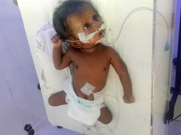 Support My Friend's Daughter Undergo Heart Surgery.