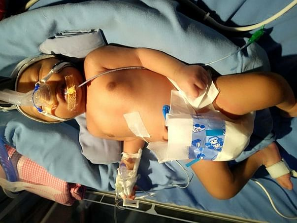 Help My 22 Days Old Baby Recover From A Critical Medical Issue.