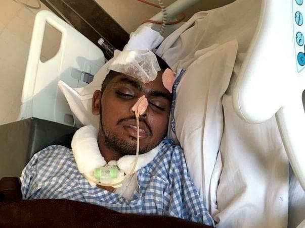 Emergency need for cosmetic bone surgery - SAVE HARI'S LIFE