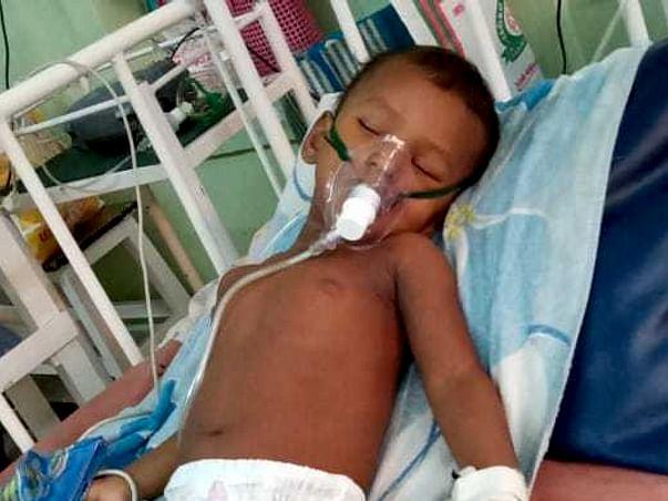 Help 1.6 Years Old Kid Praneeth Undergo Open Heart Surgery