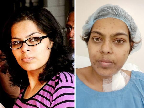 Help Priyanka Undergo Multiple Organ Transplant