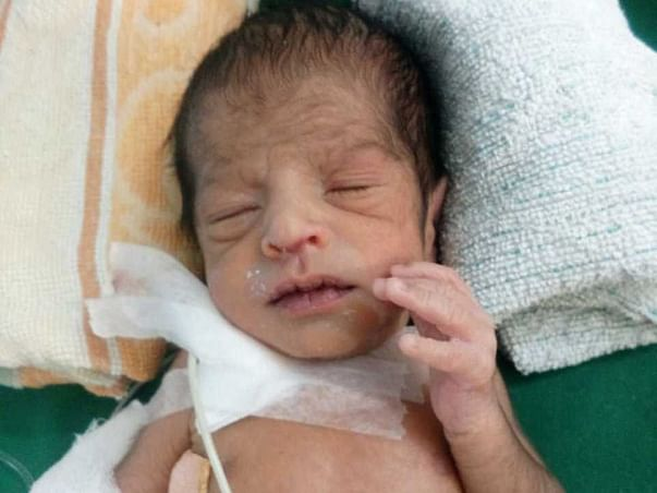 Help Baby Of Divya With Surgery