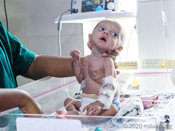 This Baby's Kidneys Will Give Up On Him Completely Without Surgery