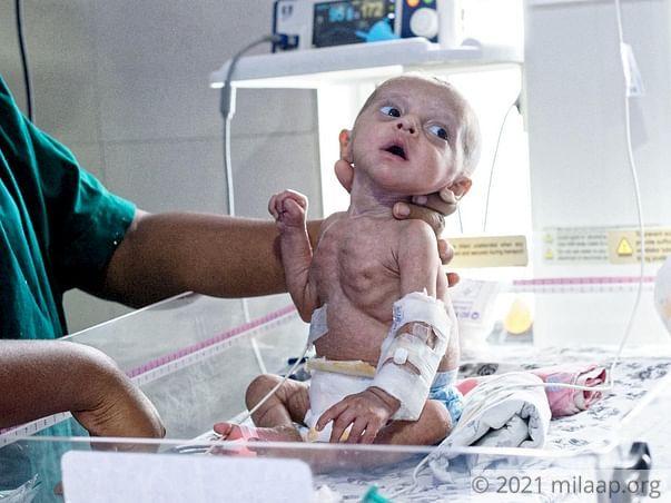 Abu Talha needs your help to undergo his treatment