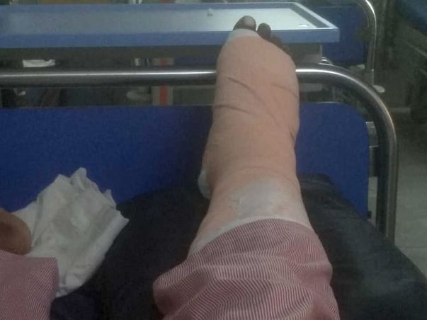 Help Myself Recover From Foot Infection And Surgery.