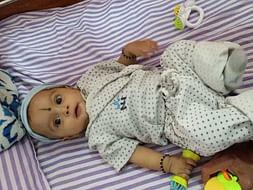 Help Sukruthi's Baby Undergo Cardiac Treatment