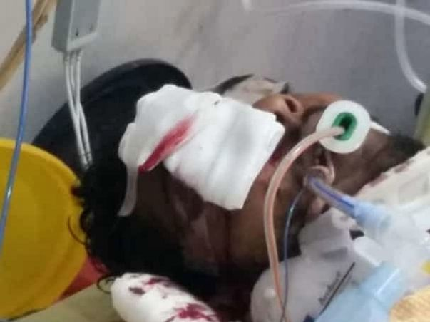 Help My Friend Undergo Brain Surgery And Plastic Surgery To Recover.