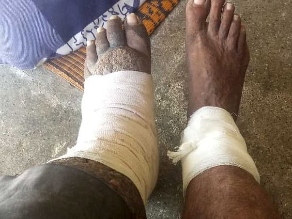 Help Mirchu Mal Who lost his family in a Fire Accident