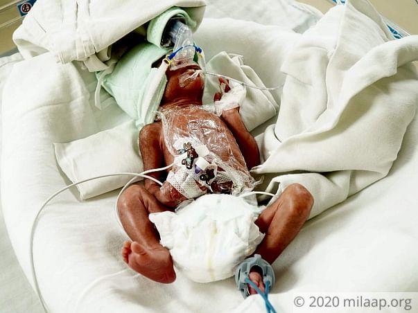 Twin babies of meenu needs your help  to survive