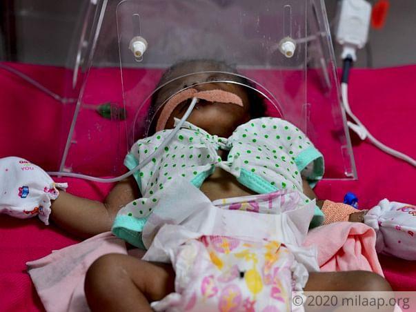 Help Baby Of Gangeswari Undergo Open Heart Surgery