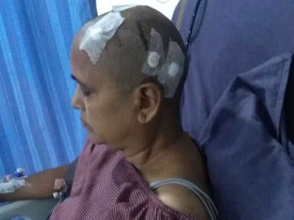 Help My Mom Who Has Tumor In Brain