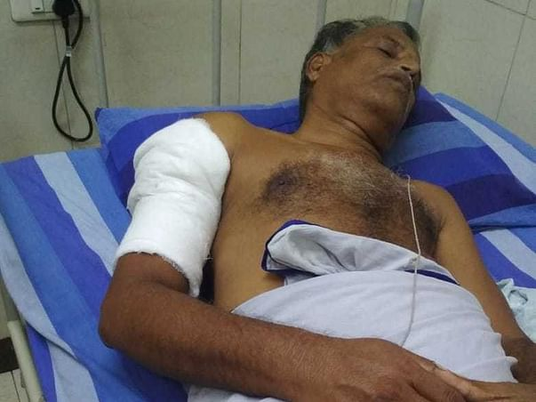 Help My Uncle Undergo Reduction Surgery.