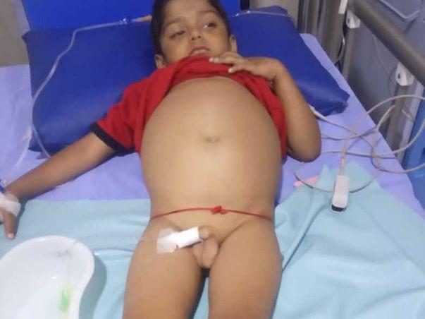 Help My Nephew To Undergo A Liver Transplant
