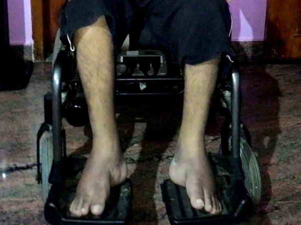 Please help me to fight against motor neurone disease(ALS)