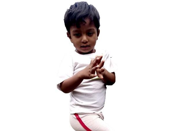 Ullas need help for Bone marrow transplant due to major Thalassemia