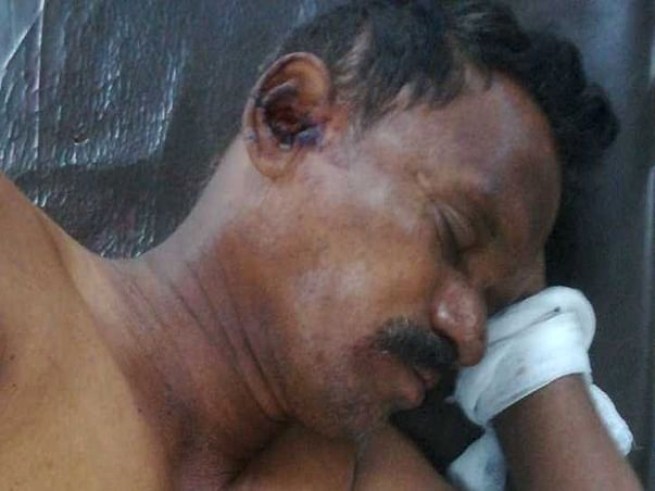 Help Ramakrishna Recover From Accident Injury