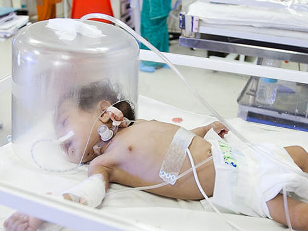 Help Little boy 1 year old child he need Urgent Liver Transplant surge