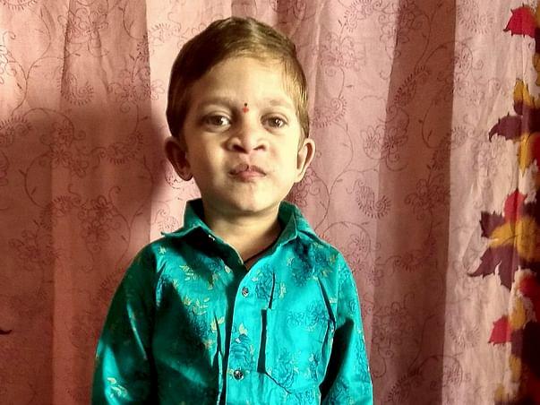 Help 6-Year-Old, Pavan From Rare Disease - Hermansky Pudlak Syndrome
