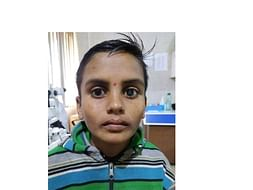 Help Sunil who cannot Speak nor Hear for his Eye Surgery