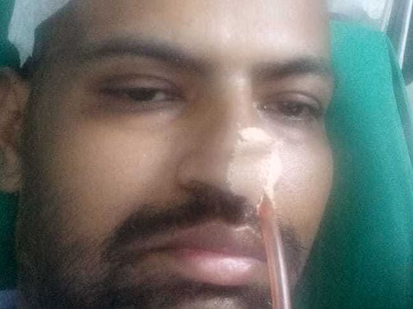 Help My Brother Nusrat Undergo Brain surgery