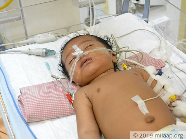Help Pooja's Baby Fight Viral Bronchopneumonia