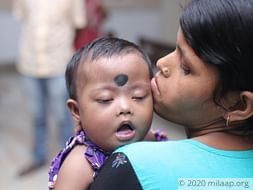 Help Puja Haldar Undergo A Cardiac Surgery