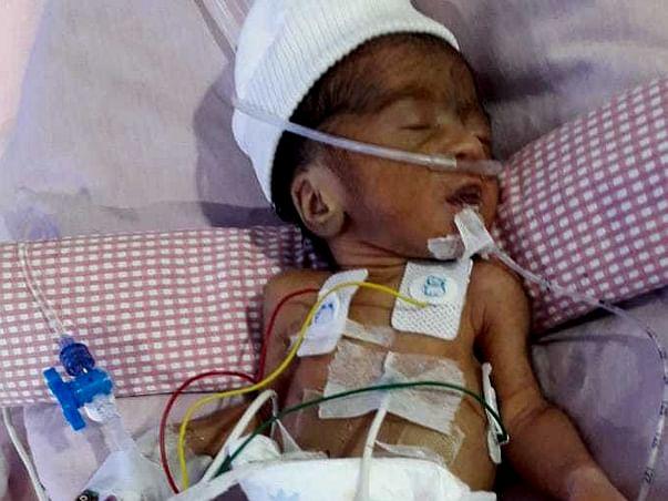 Help Premature Born Roja Fight For Life!