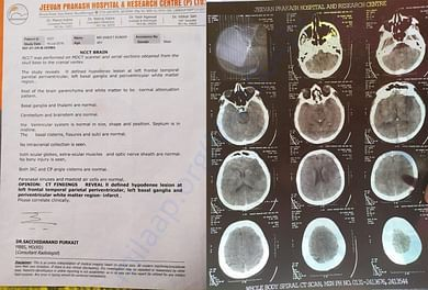 CT Scan July 18