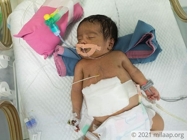 Help Baby of Fathima Ahmed Survive